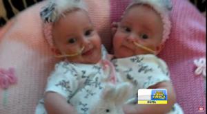 """Después de negarse a abortar, los padres de bebes siameses dicen que son un """"milagro""""."""