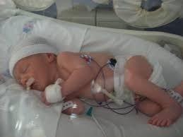 """Pensó que su bebé había muerto durante el aborto tardío, pero luego sintió """"una patada"""""""